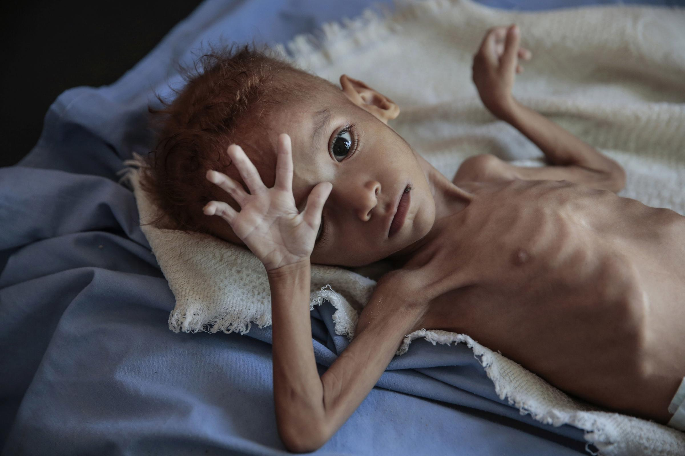The joint statement says 14m people in Yemen are at risk of starving to death